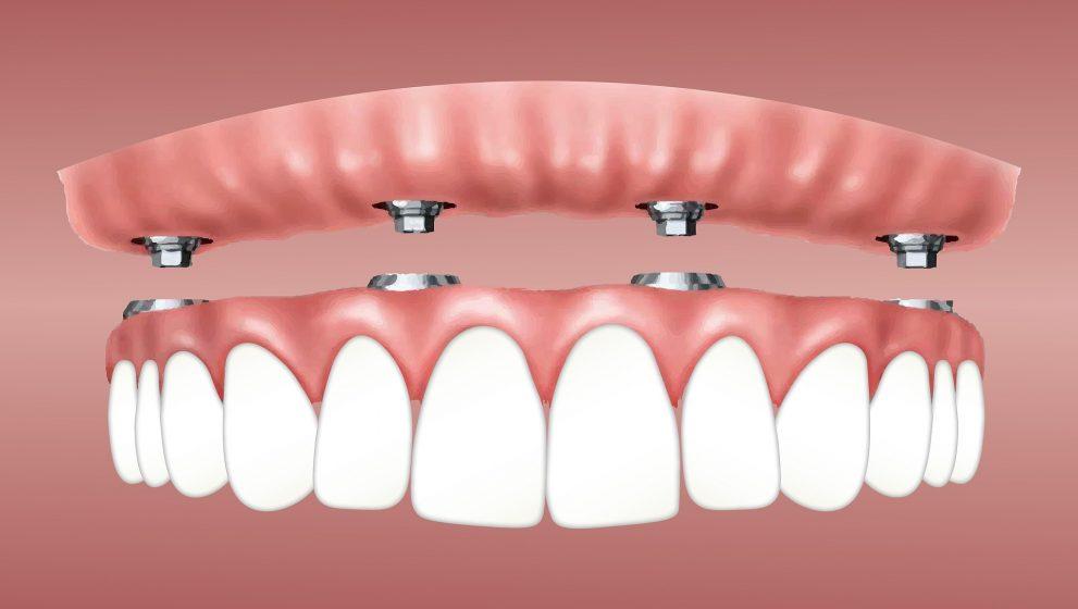 Pros y contras de los implantes dentales