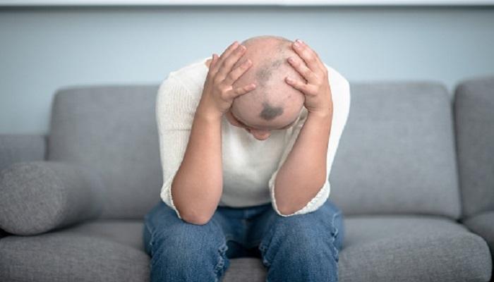 Todo lo que debes saber sobre caída del cabello luego de la quimioterapia